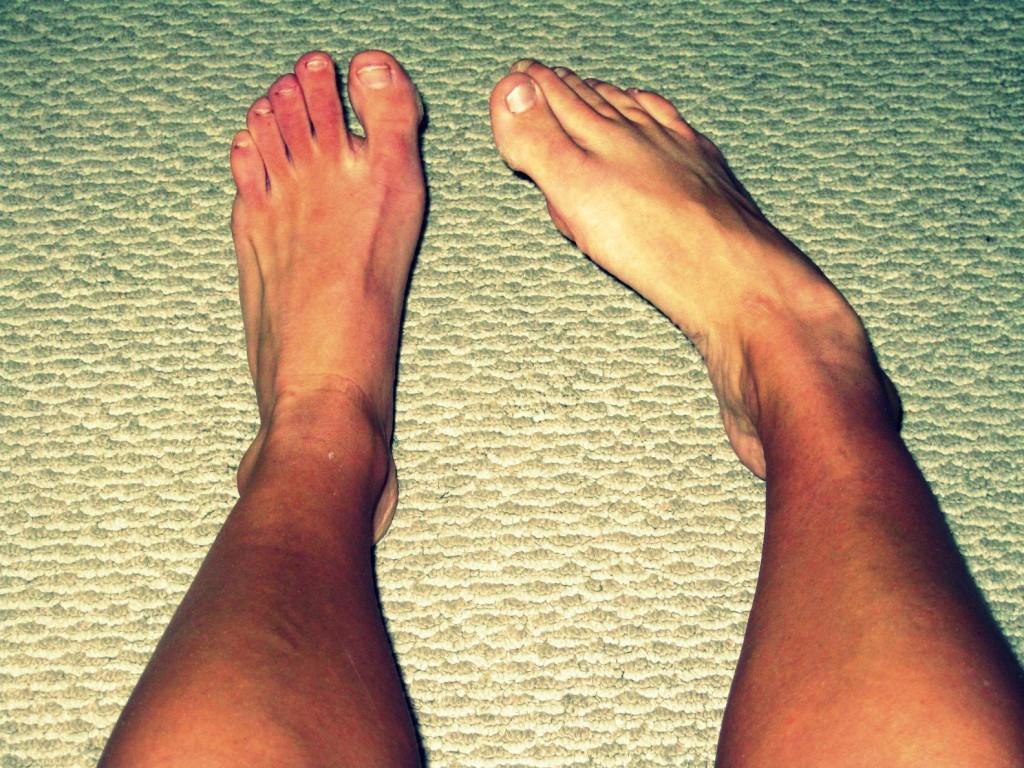5 Ways to Prevent & Treat Shin Splints